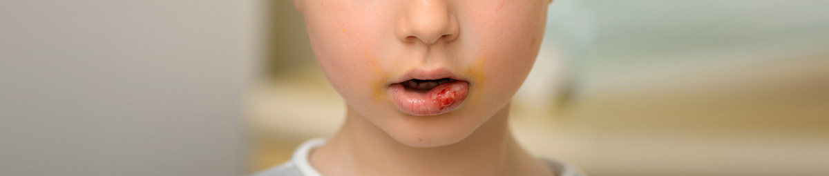 What to do if your child knocks his tooth off?