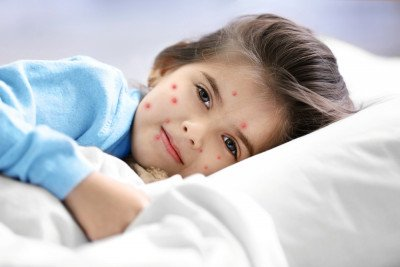 Chickenpox: Symptoms, treatment and prevention