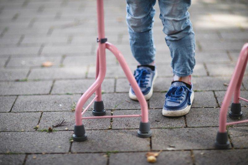 أهمية العلاج الطبيعي للأطفال المصابين بالصلب المشقوق