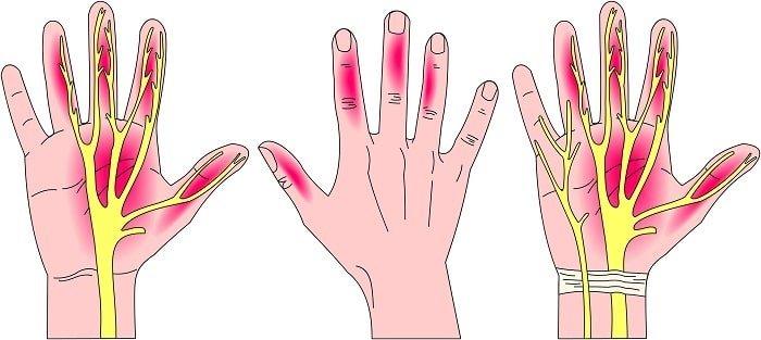 المناطق التي يغذيها العصب الأوسط في اليد