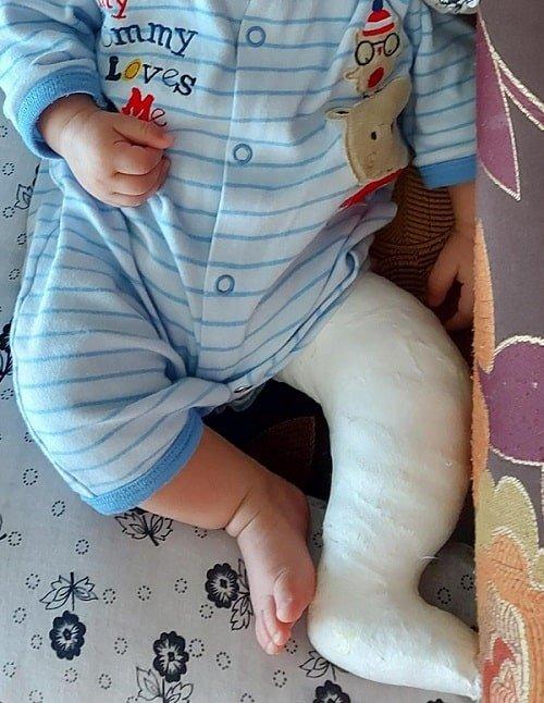 طفل يعاني من القدم الحنفاء/ مرحلة الجبيرة