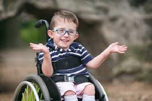 طفل مصاب بالصلب المشقوق